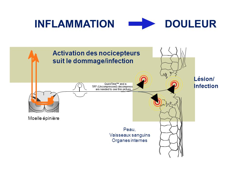 INFLAMMATIONDOULEUR Activation des nocicepteurs suit le dommage/infection Lésion/ Infection