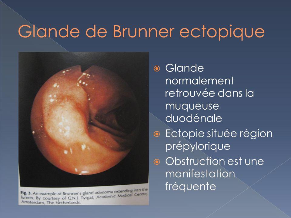 Glande normalement retrouvée dans la muqueuse duodénale Ectopie située région prépylorique Obstruction est une manifestation fréquente