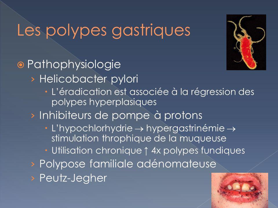 Pathophysiologie Helicobacter pylori Léradication est associée à la régression des polypes hyperplasiques Inhibiteurs de pompe à protons Lhypochlorhyd