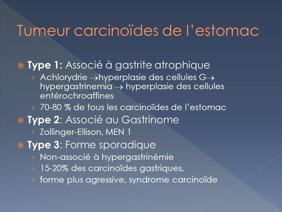 Type 1: Associé à gastrite atrophique Achlorydrie hyperplasie des cellules G hypergastrinemia hyperplasie des cellules entérochroaffines 70-80 % de to