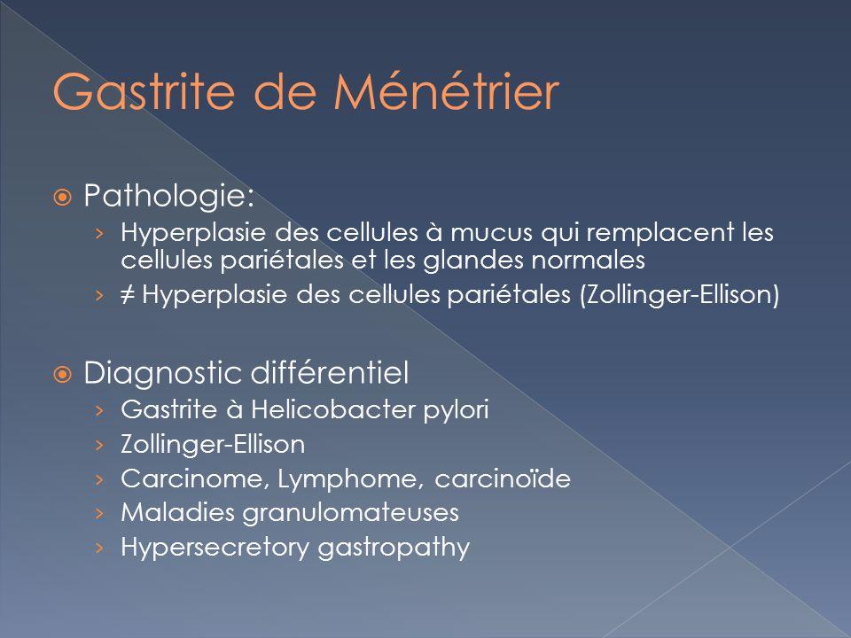 Pathologie: Hyperplasie des cellules à mucus qui remplacent les cellules pariétales et les glandes normales Hyperplasie des cellules pariétales (Zolli