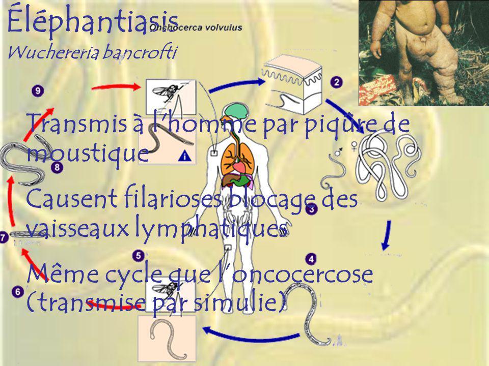Éléphantiasis Wuchereria bancrofti Transmis à l'homme par piqûre de moustique Causent filarioses blocage des vaisseaux lymphatiques Même cycle que lon