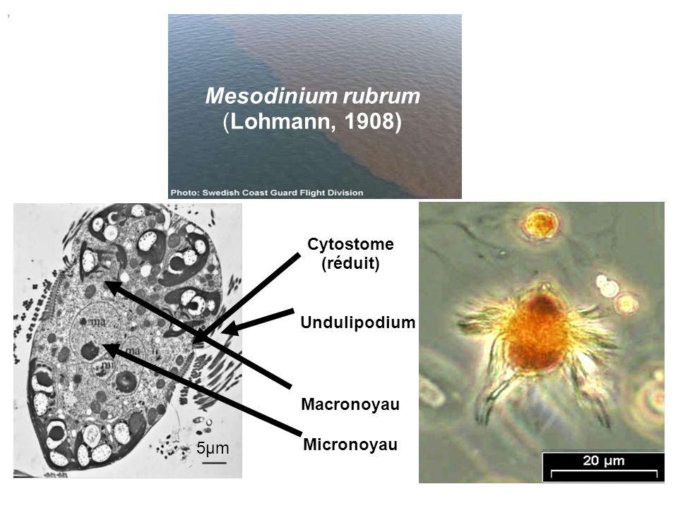Mesodinium rubrum (Lohmann, 1908), Cytostome (réduit) Undulipodium Macronoyau Micronoyau 5μm5μm
