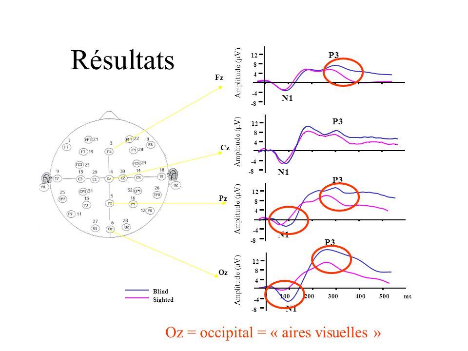 Étude de Leclerc et al. (2000) But: déterminer les bases électrophysiologiques des performances obtenues dans létude de Lessard et al. en analysant le