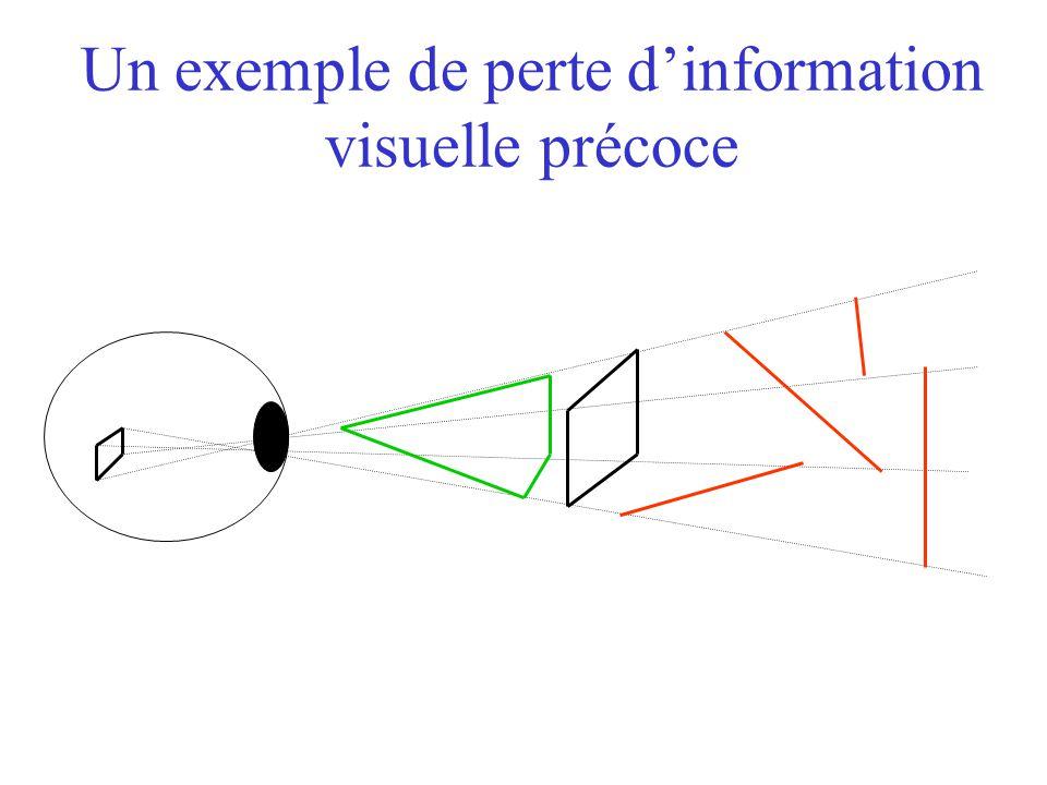 Un exemple de perte dinformation visuelle précoce
