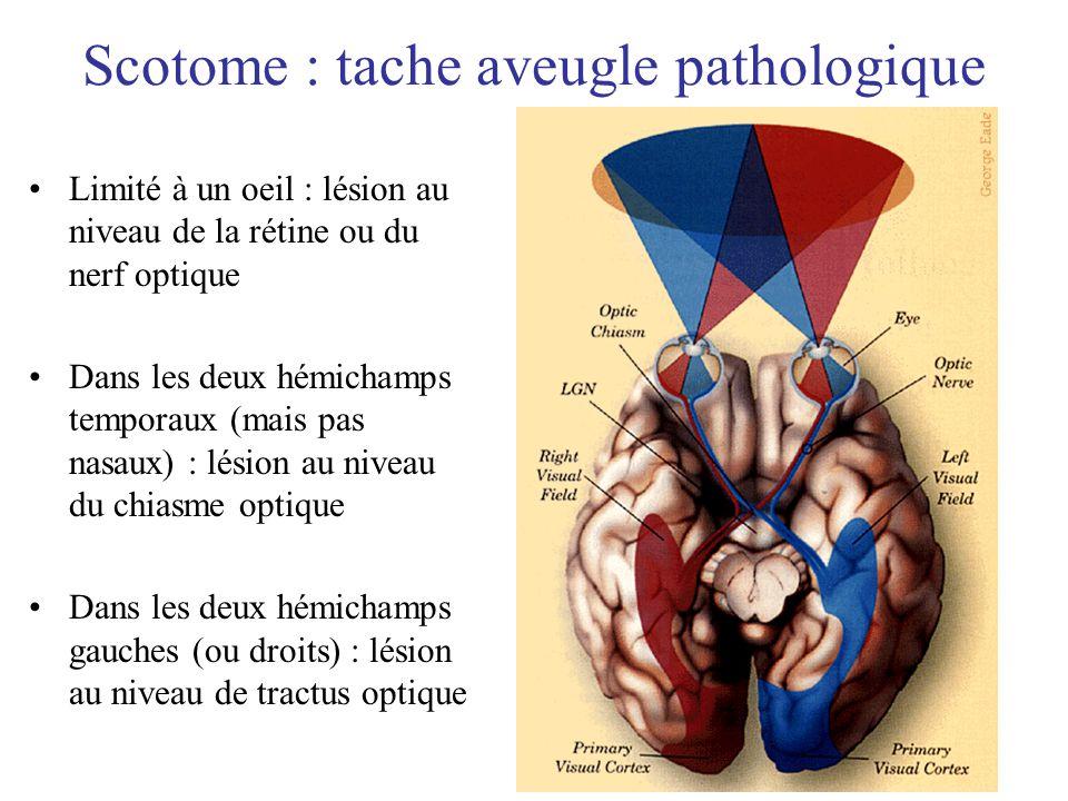 Scotome : tache aveugle pathologique Limité à un oeil : lésion au niveau de la rétine ou du nerf optique Dans les deux hémichamps temporaux (mais pas
