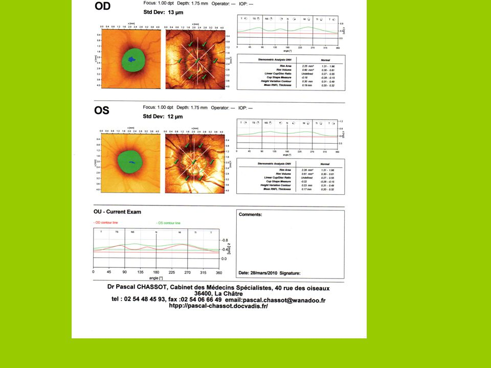 LHRT confirme la voussure papillaire bilatérale et symétrique Imageries cérébrales:confirment lexistence de Drüsen de la papille sans autre anomalie
