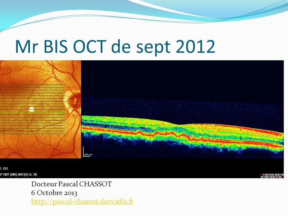 OCT œil gauche 28/9/2012 Docteur Pascal CHASSOT 6 Octobre 2013 http://pascal-chassot.docvadis.fr