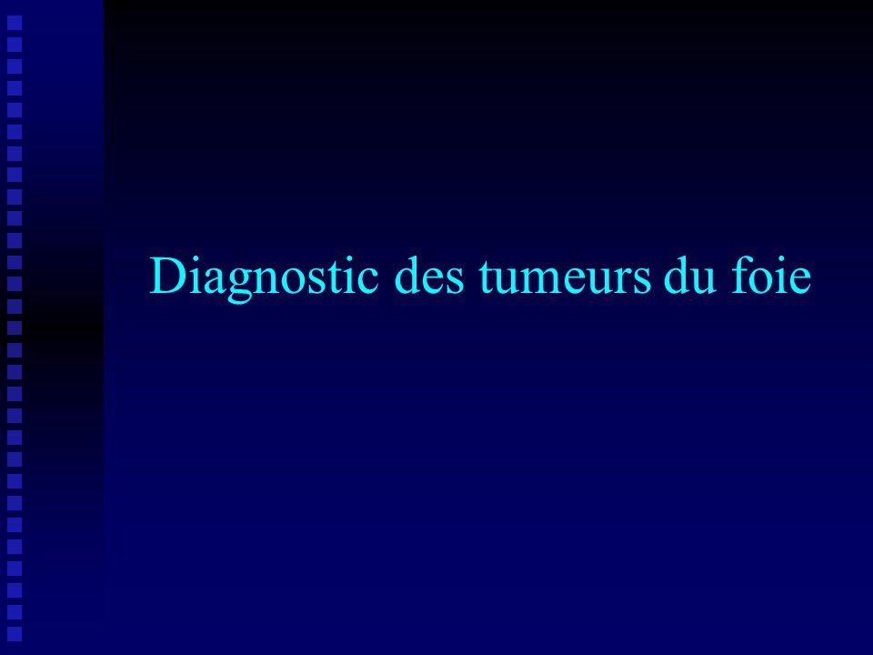 Tumeurs primitives du foie Malignes Bénignes Kyste biliaire (+++) Hémangiome (+++) Hyperplasie nodulaire (+++) Adénome Papillome biliaire Hamartome Cholangiome bénin Carcinome hépatocellulaire (+++) Cholangiocarcinome Angiosarcome Hémangio-endothéliome Histiocytome malin Leiomyosarcome