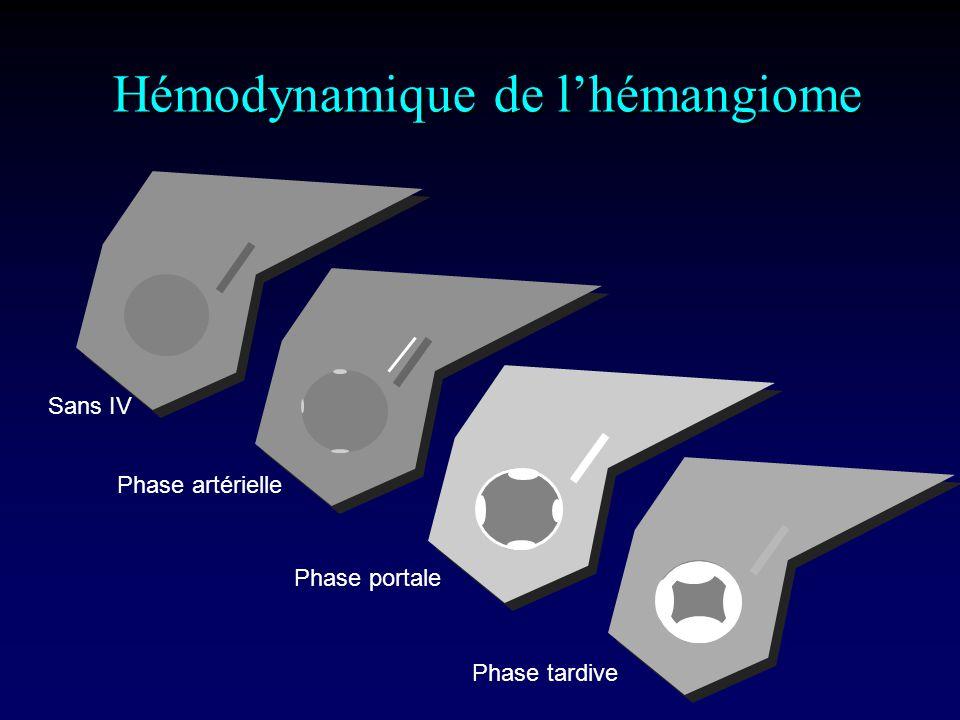 Hémodynamique de lhémangiome Sans IV Phase artérielle Phase portale Phase tardive