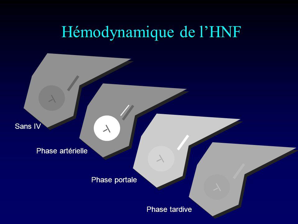 Sans IV Phase artérielle Phase portale Phase tardive Hémodynamique de lHNF