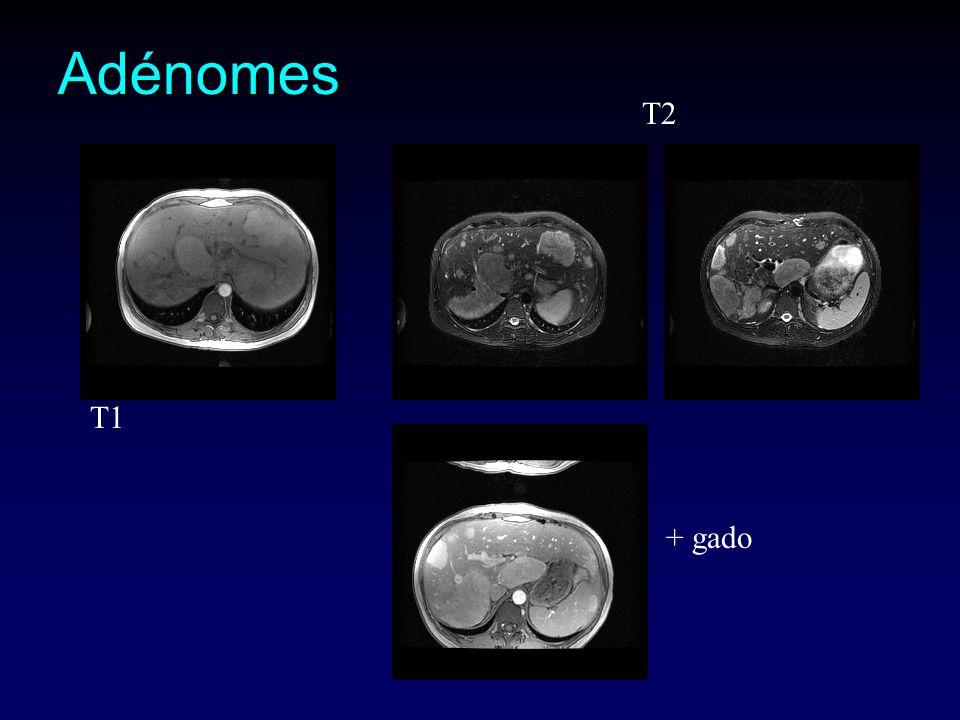 Adénomes T2 + gado T1