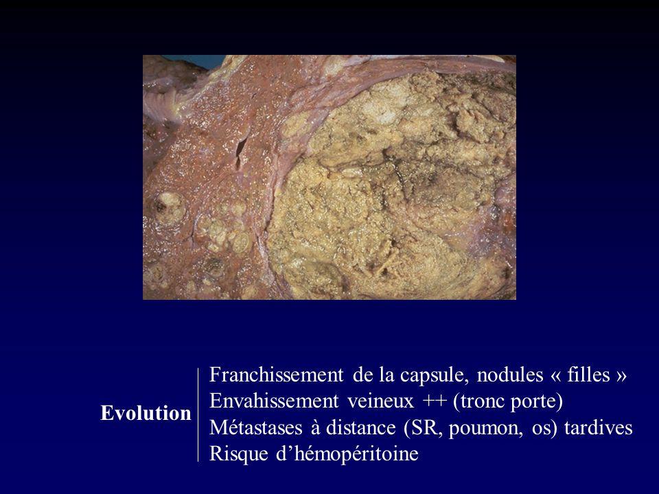 Franchissement de la capsule, nodules « filles » Envahissement veineux ++ (tronc porte) Métastases à distance (SR, poumon, os) tardives Risque dhémopéritoine Evolution