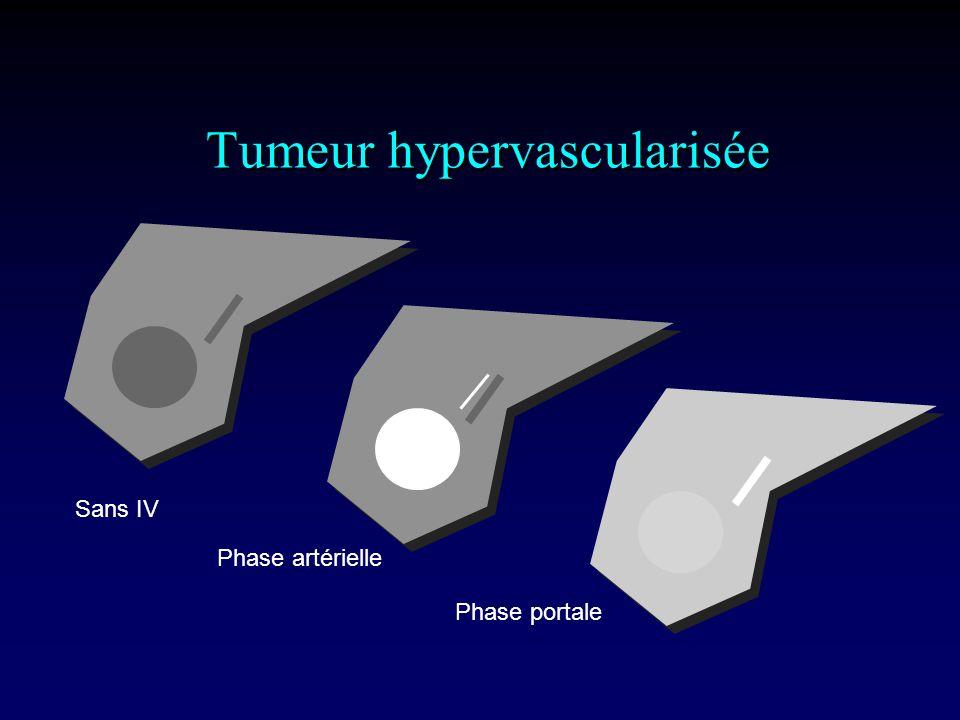 Tumeur hypervascularisée Sans IV Phase artérielle Phase portale