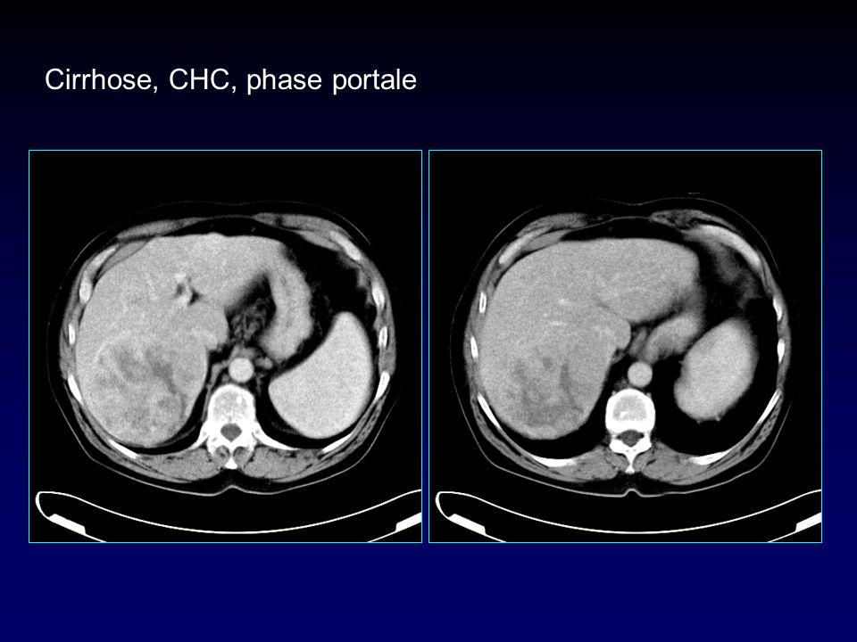 Cirrhose, CHC, phase portale