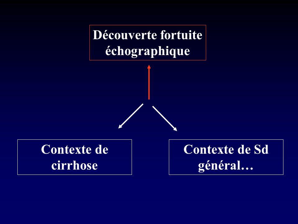 Découverte échographique fortuite Hypothèses = Tumeurs bénignes n Hémangiome atypique n Hyperplasie nodulaire focale (HNF) (+++) n Adénome hépato-cellulaire n (stéatose irrégulière)