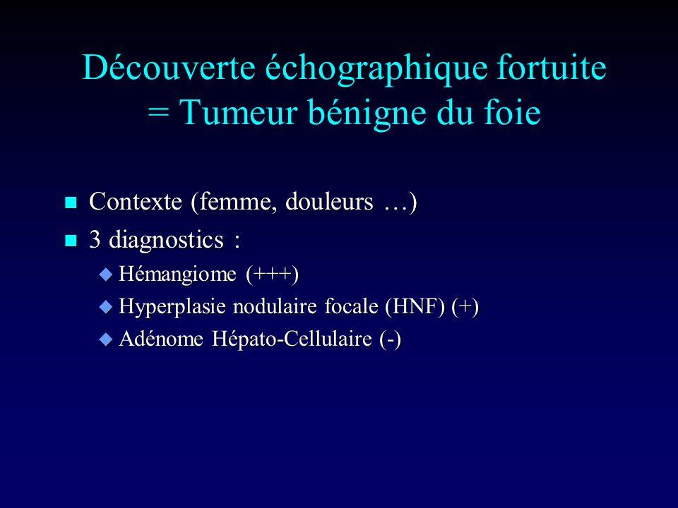 Découverte échographique fortuite = Tumeur bénigne du foie n Contexte (femme, douleurs …) n 3 diagnostics : u Hémangiome (+++) u Hyperplasie nodulaire focale (HNF) (+) u Adénome Hépato-Cellulaire (-)