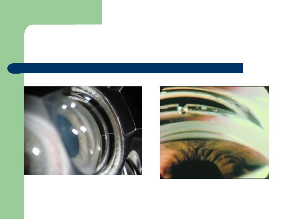 Fond doeil Pupille dilatée si possible Etude de la papille optique – Taille – Couleur – Excavation: rapport cup/disc (C/D), normalement 0.3 et/ou asymétrique – Emergence des vaisseaux centraux de la rétine – Atrophie péripapillaire