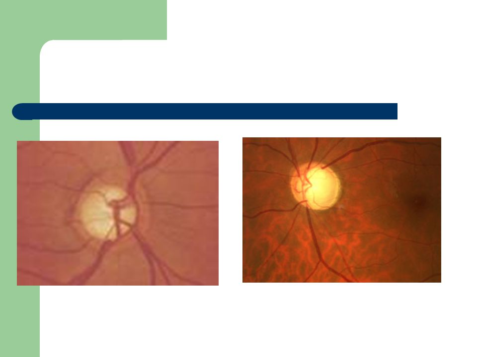 Champ visuel automatique 24-2 Etude des 24 degrés centraux du champ visuel Reproductibilité +++ pour comparaison au fil du suivi du patient Principe: fixation dune cible, et projection de stimuli lumineux dans le champ visuel du patient; patient presse un bouton lorsquil voit le stimulus Examen difficile: fiabilité parfois mauvaise et CV non interprétable Altérations du champ visuel signe la neuropathie optique