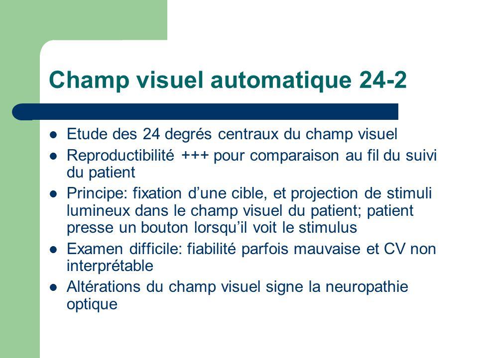 Champ visuel automatique 24-2 Etude des 24 degrés centraux du champ visuel Reproductibilité +++ pour comparaison au fil du suivi du patient Principe: