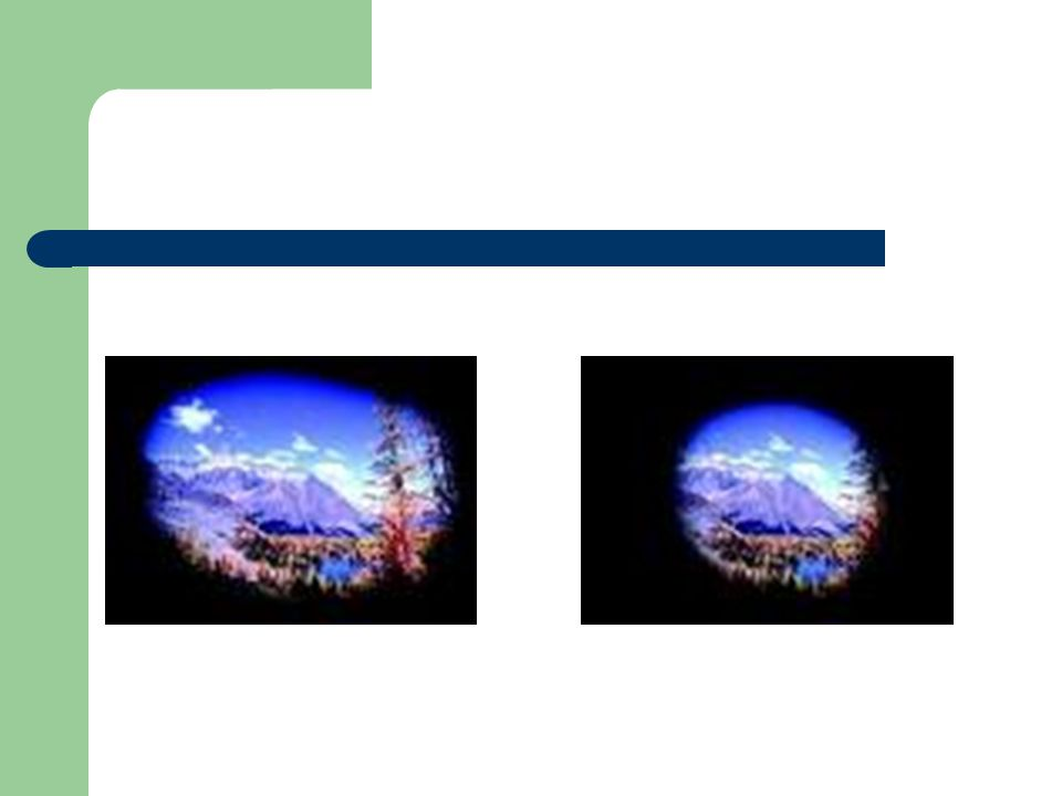 Formes cliniques Hypertonie oculaire isolée: – FO et CV normaux: surveillance Glaucome à pression normale (GPN): – TO normale mais FO et CV altérés Glaucome pigmentaire: – Trabeculum obstrué par du pigment irien; angle irido- cornéen très pigmenté Glaucome pseudo-exfoliatif: – Matériel blanchâtre se déposant dans lœil: trabéculum, capsule antérieure du cristallin