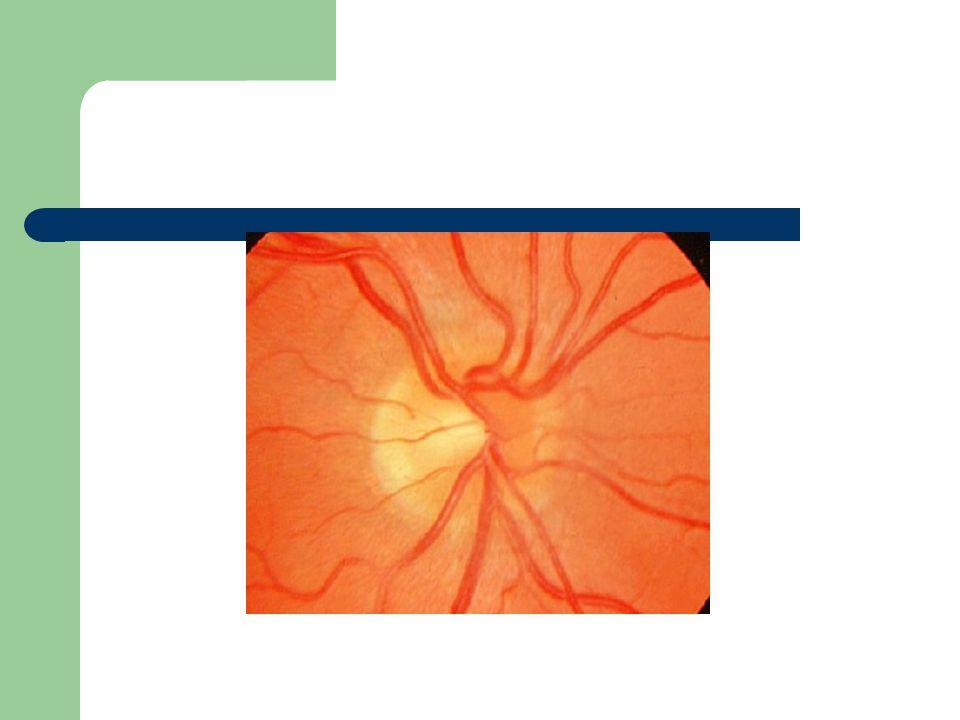 Examens chez le patient glaucomateux Acuité visuelle Tonus oculaire (aplanation) Pachymétrie Gonioscopie Fond dœil (examen de la papille optique) Champ visuel automatique 24-2