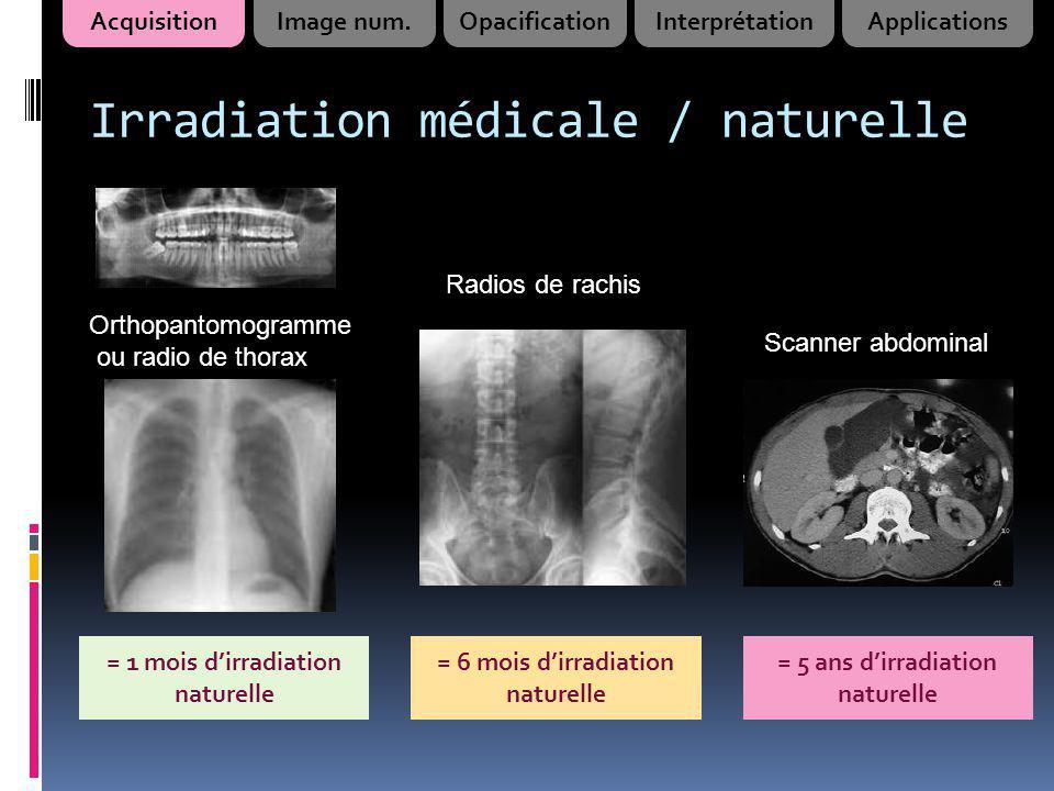 Irradiation médicale / naturelle Scanner abdominal = 1 mois dirradiation naturelle = 6 mois dirradiation naturelle = 5 ans dirradiation naturelle Radi