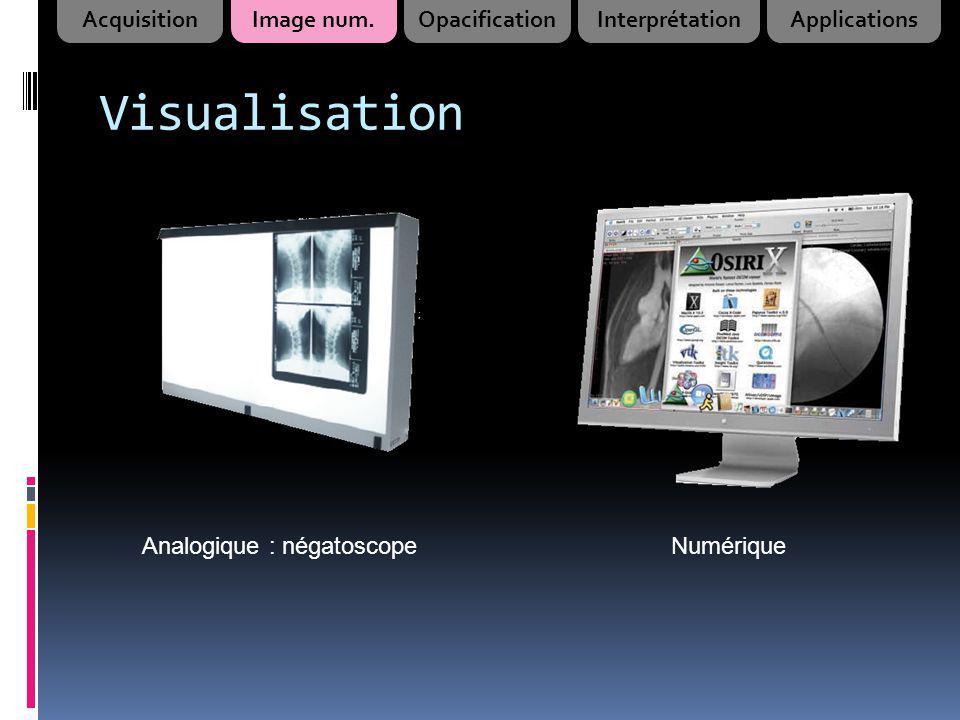Visualisation Analogique : négatoscopeNumérique AcquisitionImage num.OpacificationInterprétationApplications