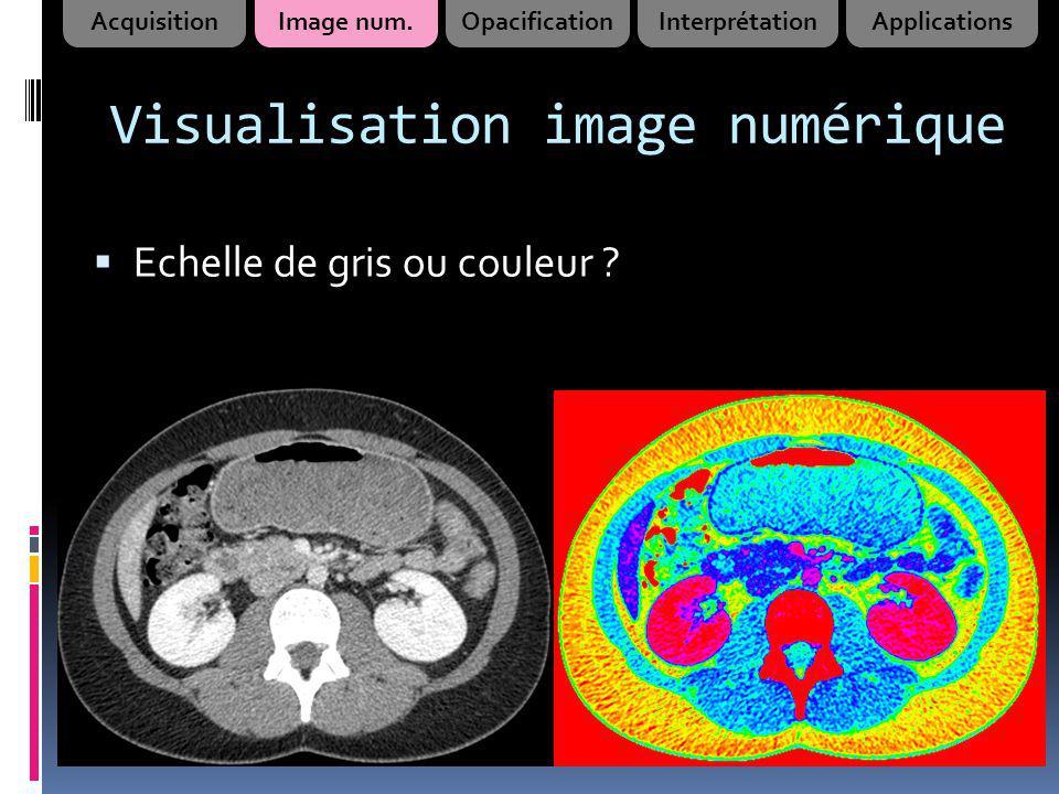Visualisation image numérique Echelle de gris ou couleur ? AcquisitionImage num.OpacificationInterprétationApplications