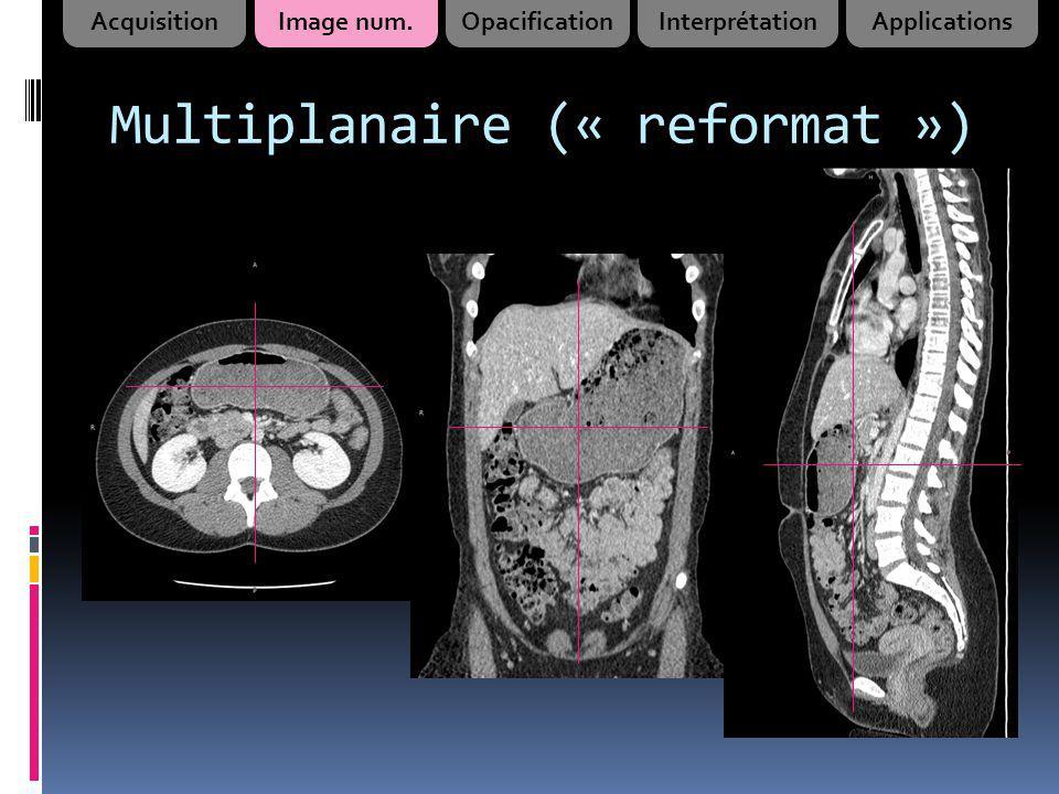 Multiplanaire (« reformat ») AcquisitionImage num.OpacificationInterprétationApplications