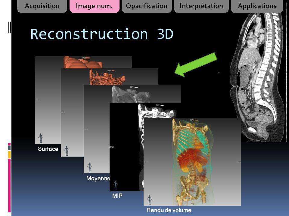 Reconstruction 3D Moyenne Surface MIP Rendu de volume AcquisitionImage num.OpacificationInterprétationApplications