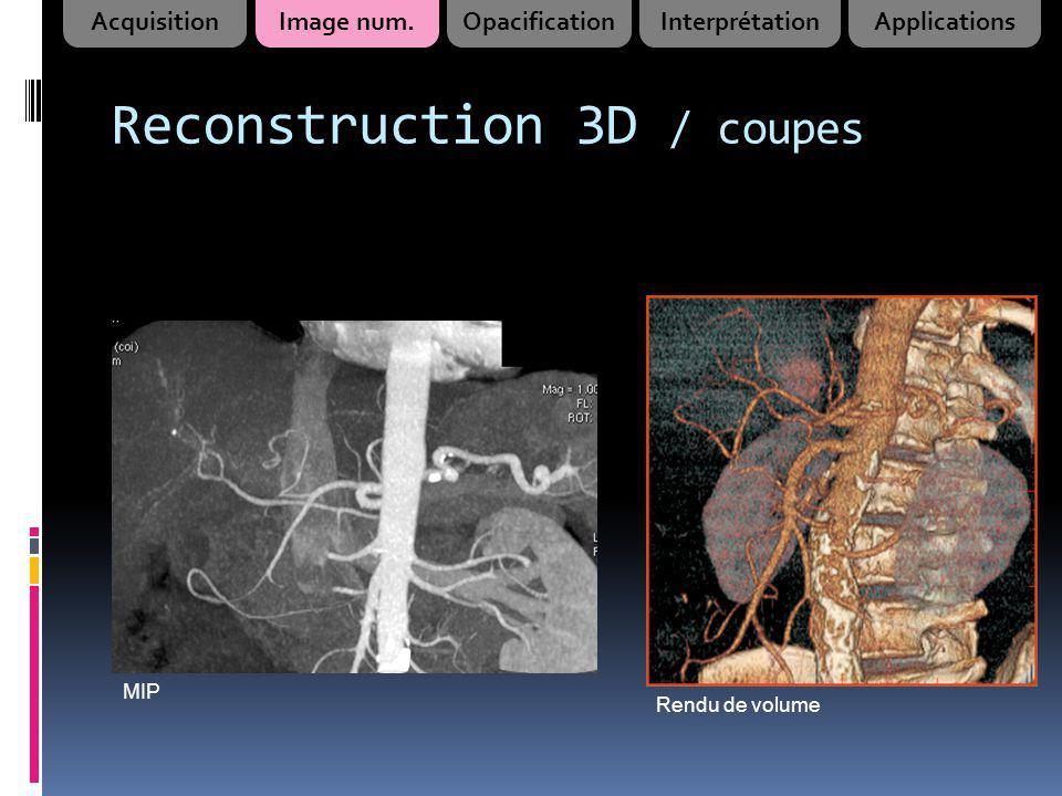 Rendu de volume MIP AcquisitionImage num.OpacificationInterprétationApplications Reconstruction 3D / coupes