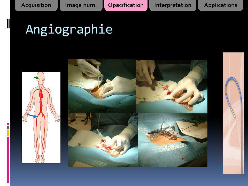 Angiographie AcquisitionImage num.OpacificationInterprétationApplications