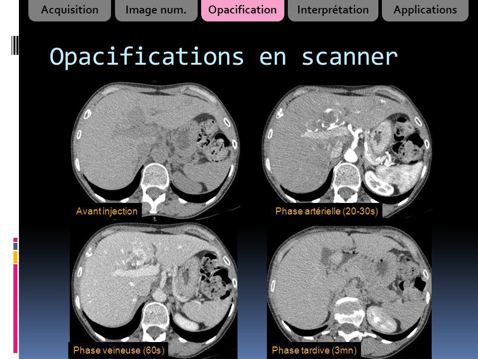 Opacifications en scanner Avant injectionPhase artérielle (20-30s) Phase veineuse (60s)Phase tardive (3mn) AcquisitionImage num.OpacificationInterprét