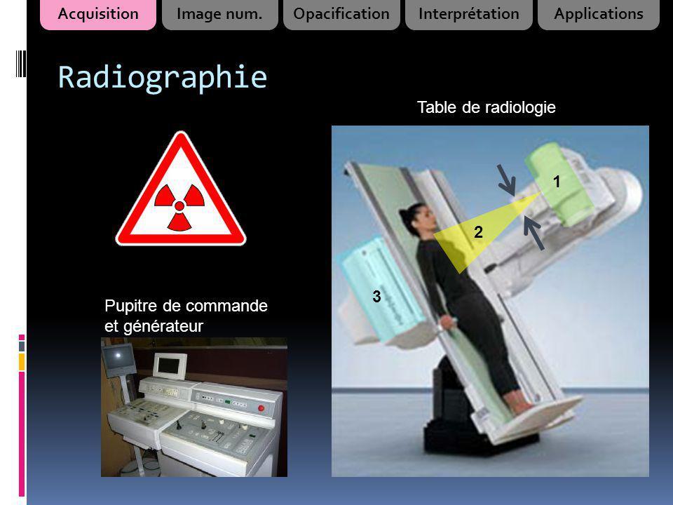 Radiographie 1 2 3 Table de radiologie Pupitre de commande et générateur AcquisitionImage num.OpacificationInterprétationApplications