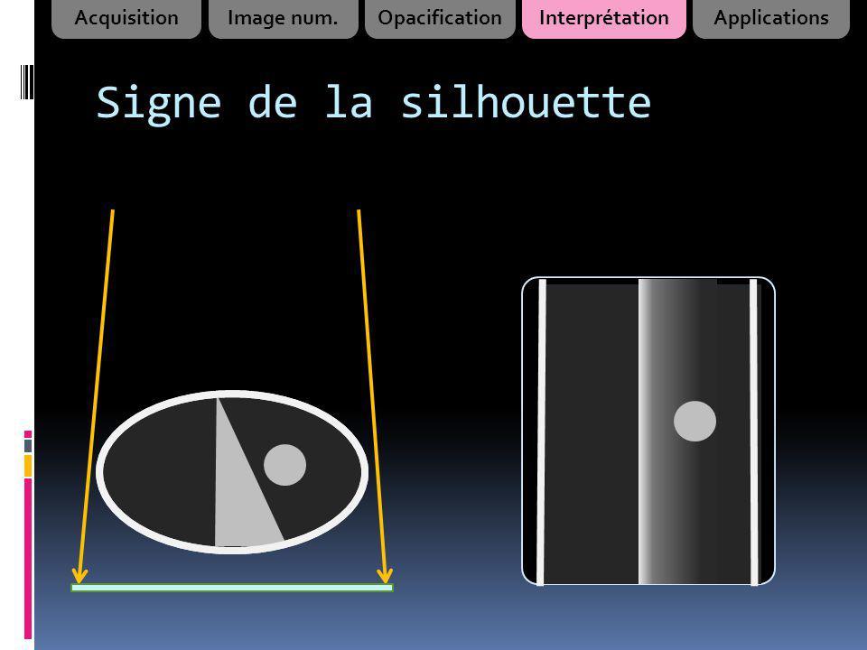 Signe de la silhouette AcquisitionImage num.OpacificationInterprétationApplications