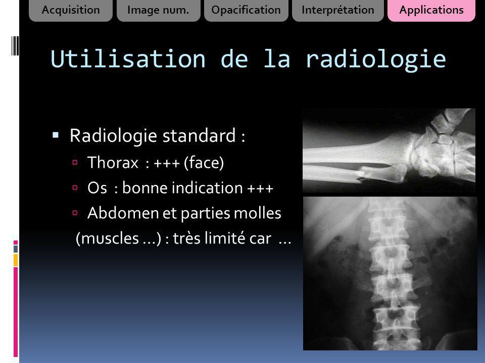 Utilisation de la radiologie Radiologie standard : Thorax : +++ (face) Os : bonne indication +++ Abdomen et parties molles (muscles …) : très limité c
