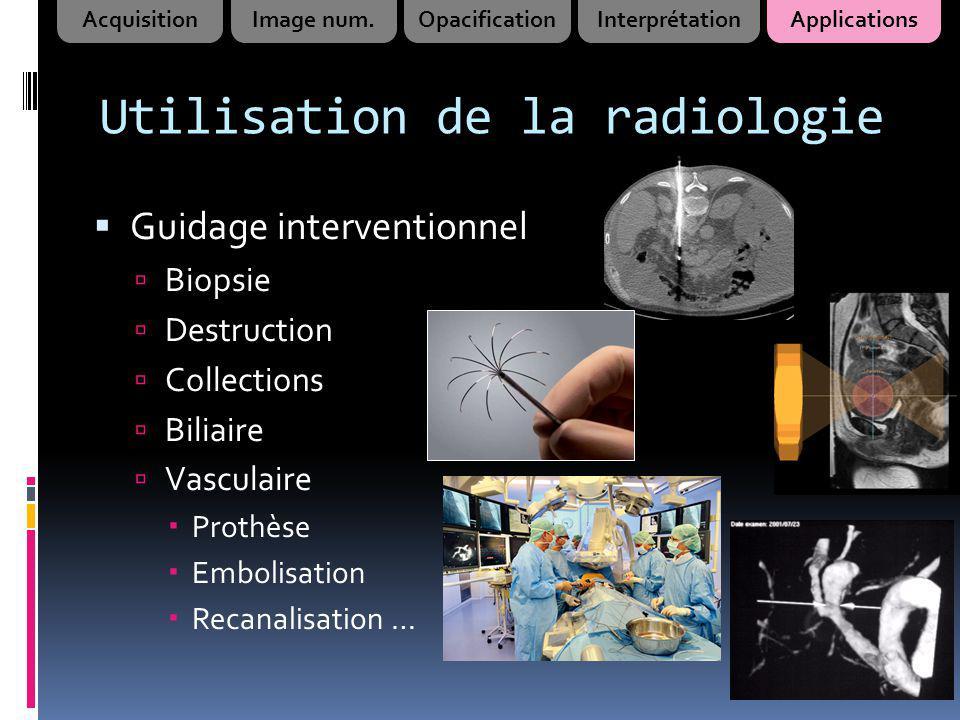 Utilisation de la radiologie Guidage interventionnel Biopsie Destruction Collections Biliaire Vasculaire Prothèse Embolisation Recanalisation … Acquis