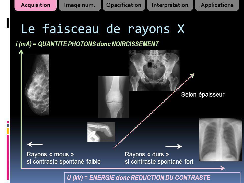 Utilisation de la radiologie Radiologie standard : Thorax : +++ (face) Os : bonne indication +++ Abdomen et parties molles (muscles …) : très limité car … AcquisitionImage num.OpacificationInterprétationApplications