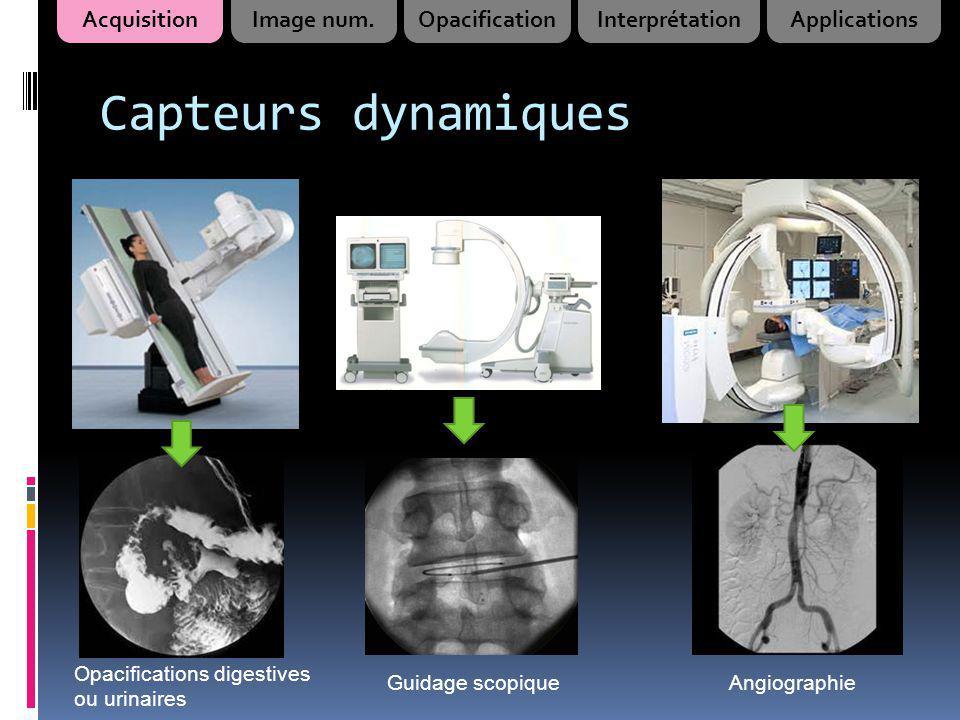 Opacifications urinaires Vessie Urèthre Urographie intraveineuse (UIV) Cystographie AcquisitionImage num.OpacificationInterprétationApplications