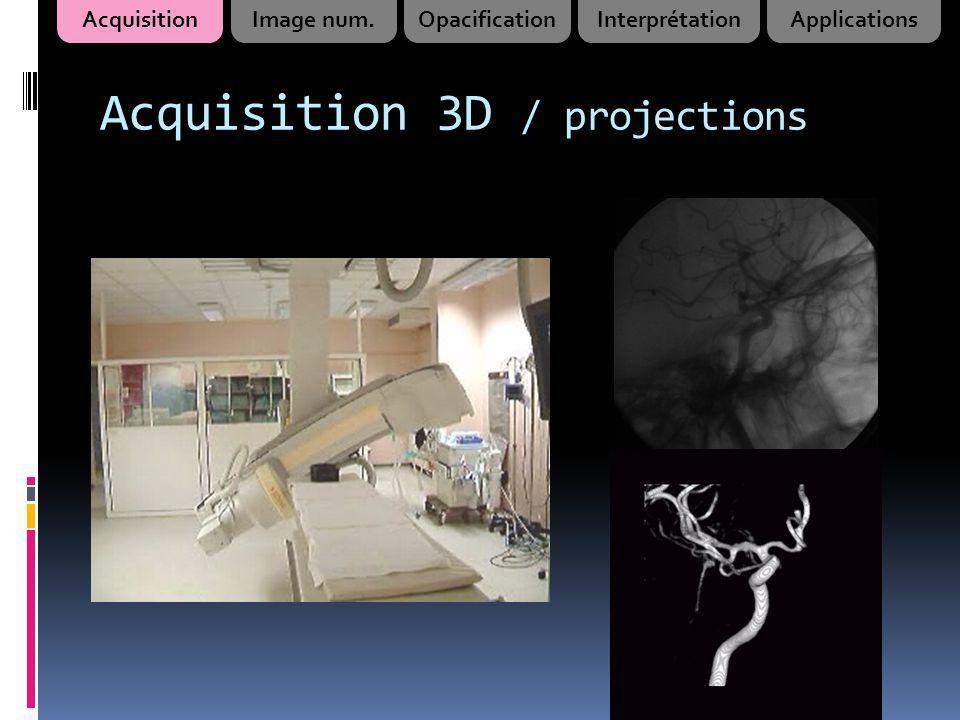 Acquisition 3D / projections AcquisitionImage num.OpacificationInterprétationApplications
