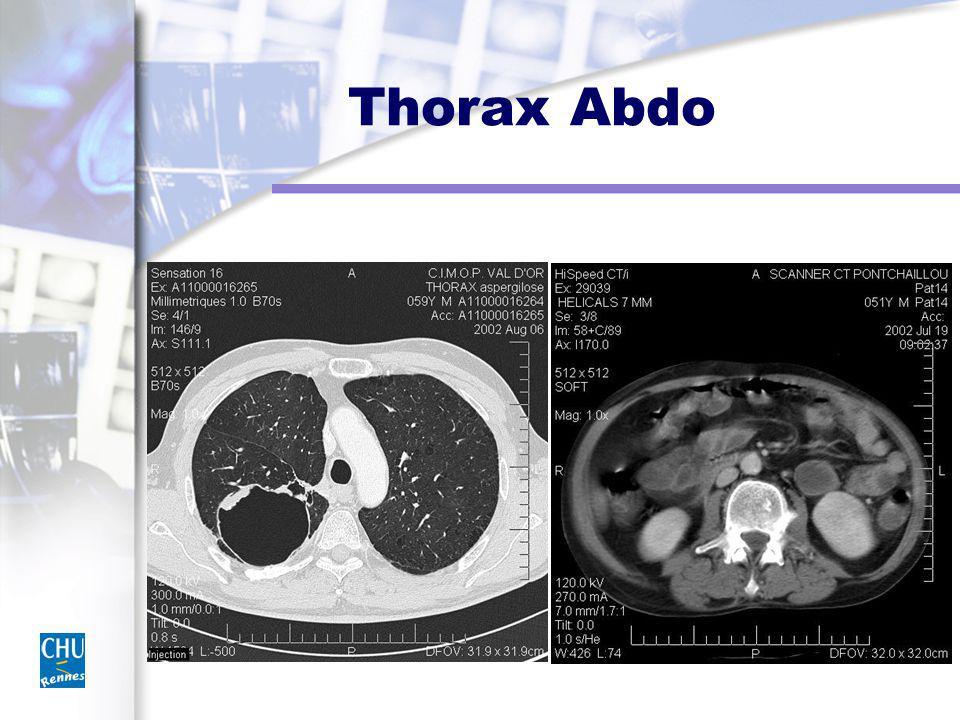 Thorax Abdo