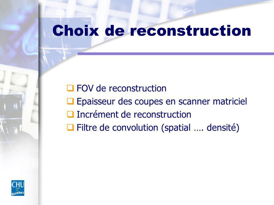 Choix de reconstruction FOV de reconstruction Epaisseur des coupes en scanner matriciel Incrément de reconstruction Filtre de convolution (spatial ….