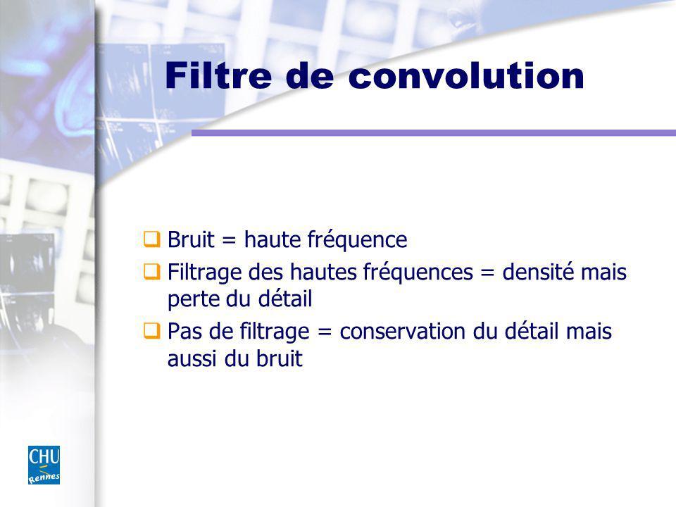 Filtre de convolution Bruit = haute fréquence Filtrage des hautes fréquences = densité mais perte du détail Pas de filtrage = conservation du détail m