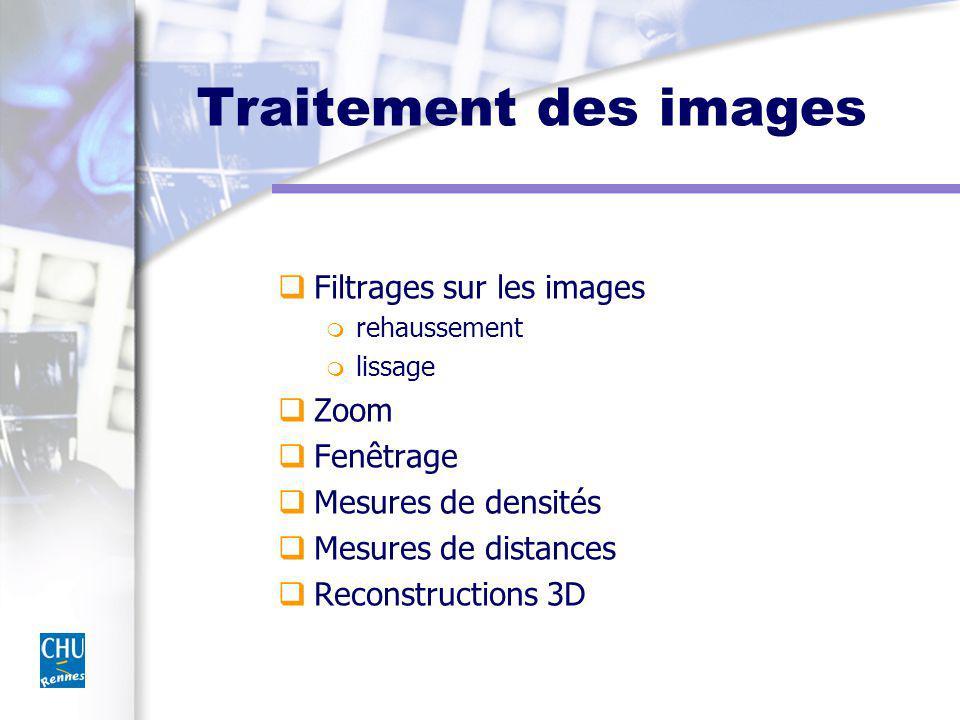 Traitement des images Filtrages sur les images m rehaussement m lissage Zoom Fenêtrage Mesures de densités Mesures de distances Reconstructions 3D