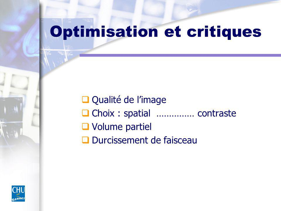 Optimisation et critiques Qualité de limage Choix : spatial …………… contraste Volume partiel Durcissement de faisceau