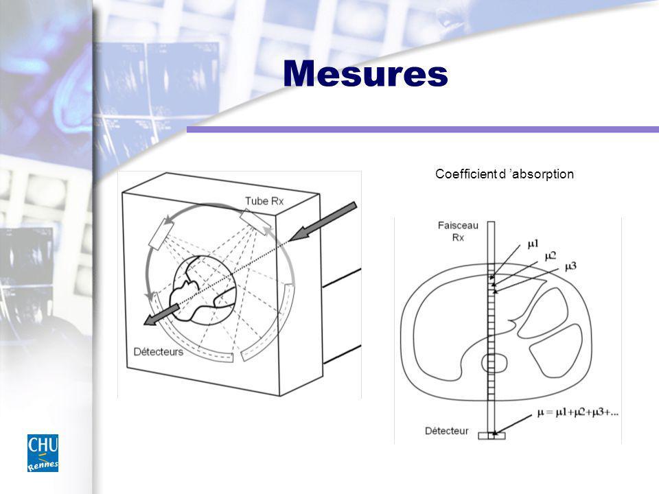 Filtre de convolution Bruit = haute fréquence Filtrage des hautes fréquences = densité mais perte du détail Pas de filtrage = conservation du détail mais aussi du bruit