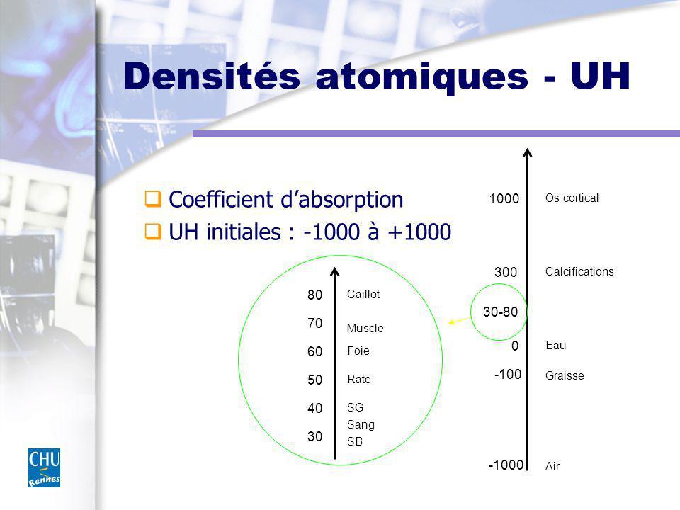 Densités atomiques - UH Coefficient dabsorption UH initiales : -1000 à +1000 -1000 -100 0 30-80 300 1000 30 40 70 80 60 50 Caillot Muscle Foie Rate Sang SG SB Eau Calcifications Os cortical Graisse Air