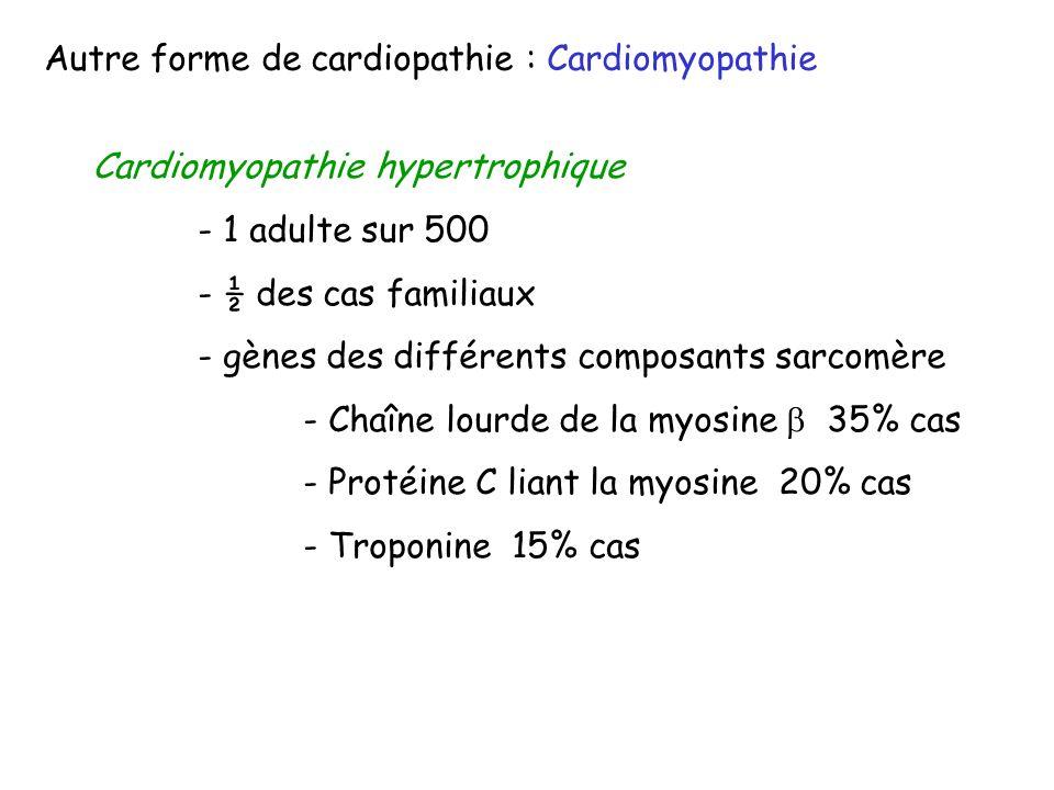 Autre forme de cardiopathie : Cardiomyopathie Cardiomyopathie hypertrophique - 1 adulte sur 500 - ½ des cas familiaux - gènes des différents composant
