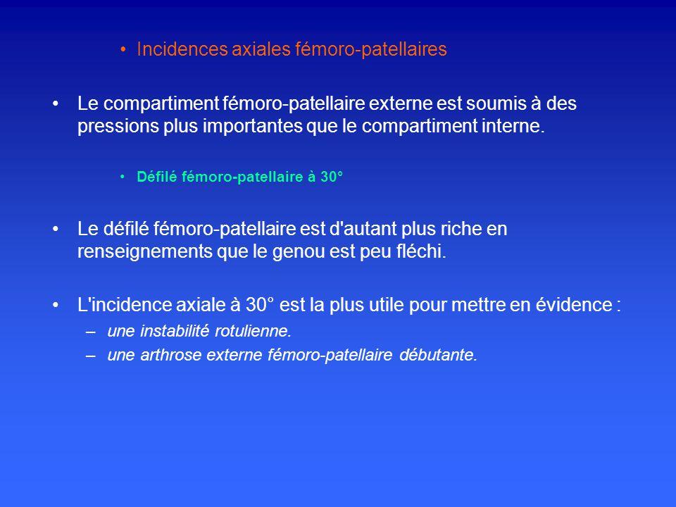 Incidences axiales fémoro-patellaires Le compartiment fémoro-patellaire externe est soumis à des pressions plus importantes que le compartiment interne.